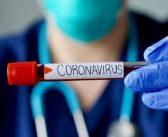 IJZ: Još pet slučajeva koronavirusa, broj inficiranih je 52