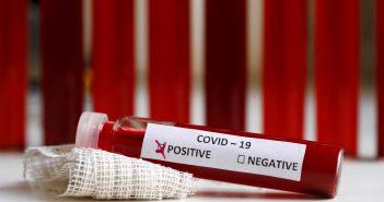 Novi slučajevi, ukupno 239 oboljelih od Covid-19
