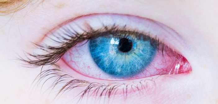 Istraživanja pokazala: Kavasakijeva bolest se javlja i kod odraslih